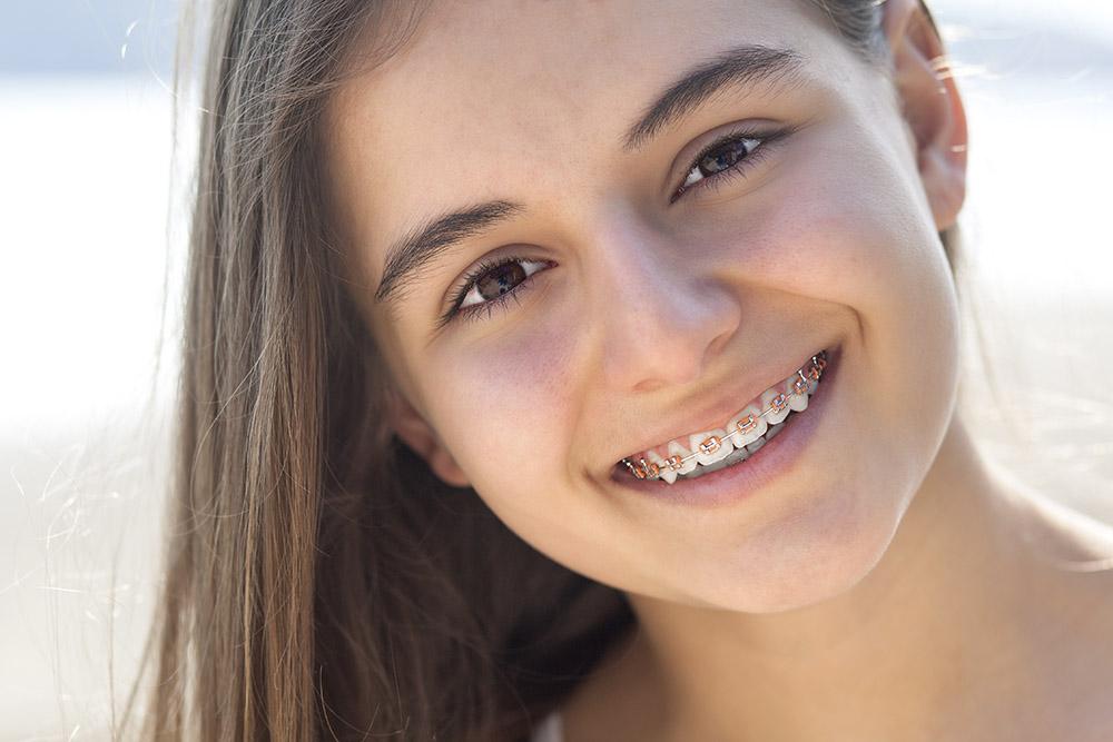 Pretty teenage girl wearing braces smiling cheerfully